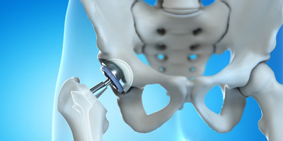 Hip Replacement treatment in Bhuj Kutch