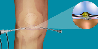 Arthroscopy Surgery in Bhuj Kutch