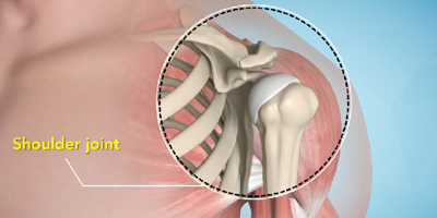 Shoulder joint treatment in Bhuj Kutch