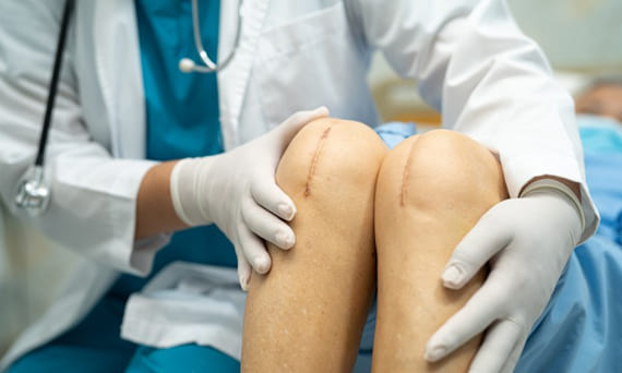 Total Knee Replacement Treatment in Bhuj Kutch